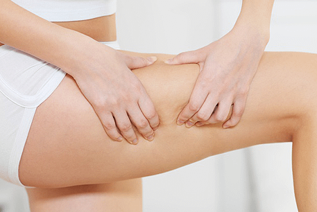 thigh-fat-removal